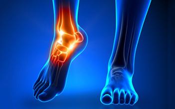 Artrosi del piede