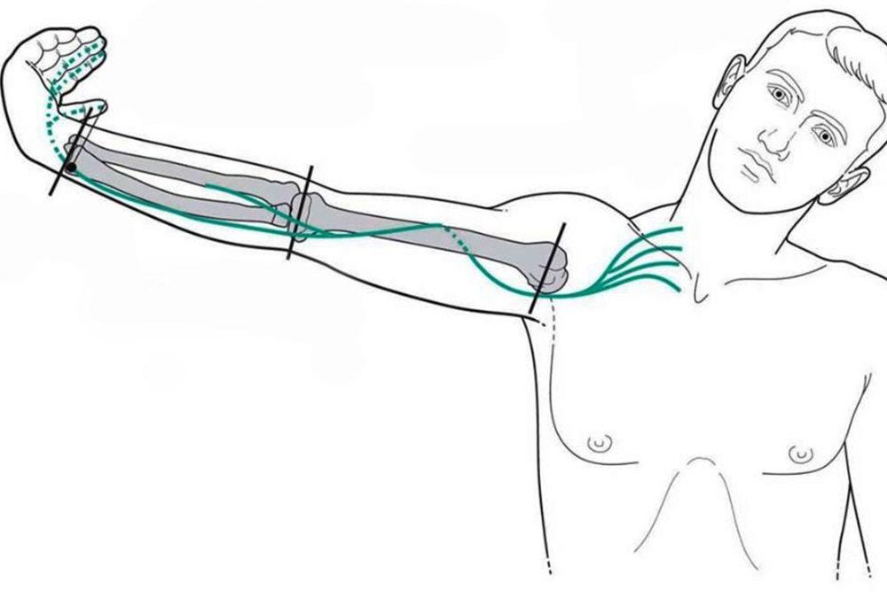 Mobilizzazione del sistema nervoso periferico: LA NEURODINAMICA