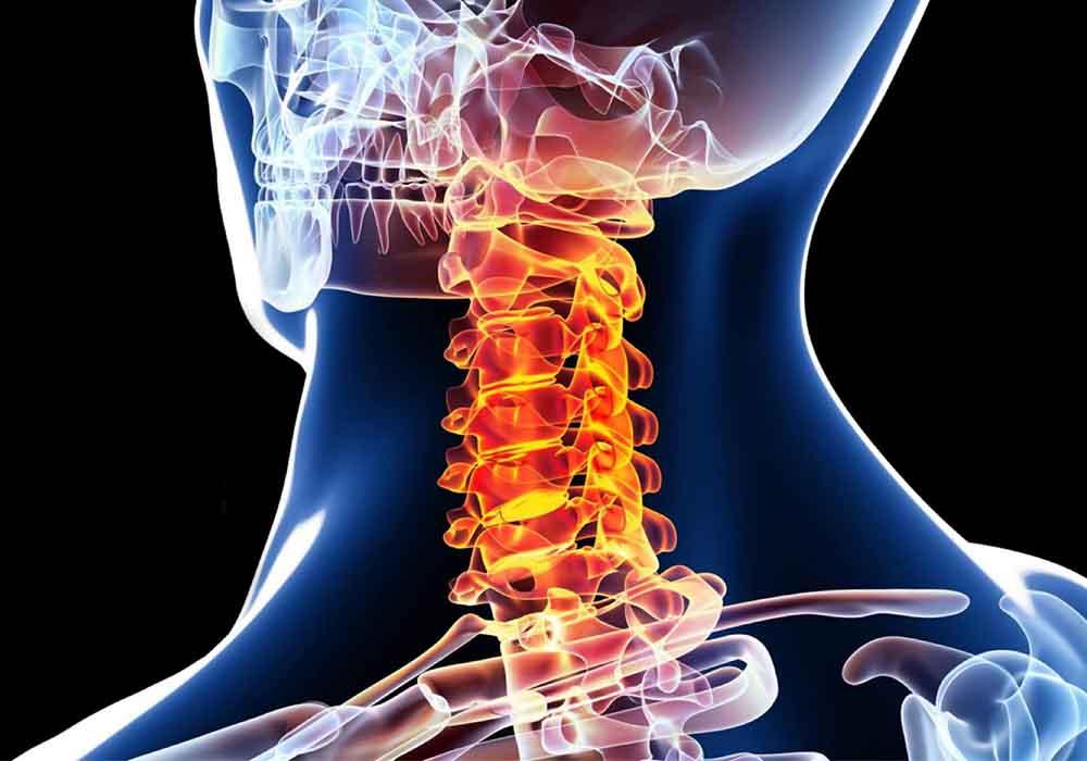 dolore cronico collo