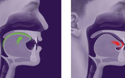 Postura e Lingua.Cambiamenti Posturali dopo un corretto posizionamento della lingua