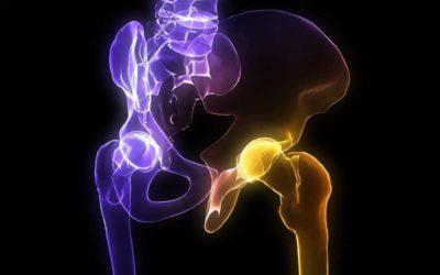 Riabilitazione dopo l'intervento all'anca, l'importanza della fisioterapia