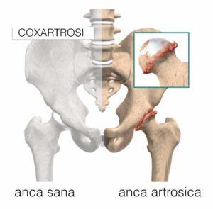 riabilitazione anca