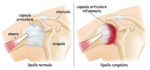tendinopatia calcifica spalla