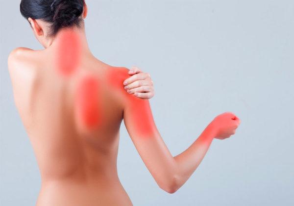 Nevralgie cervico brachiali