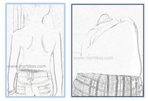 Scoliosi idiopatica