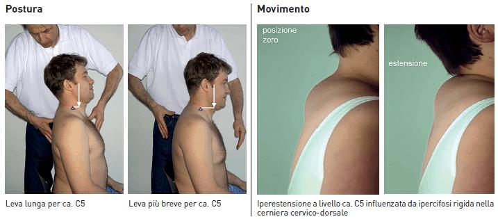 esercizio terapeutico cervicale