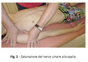 algie cervico brachiali