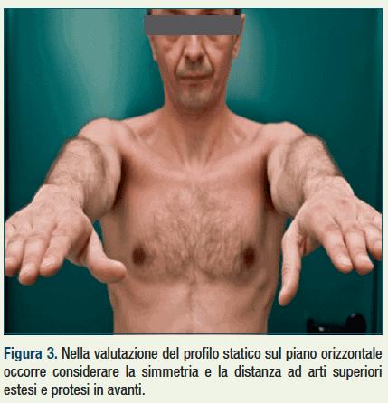 riabilitazione artopatie degenerative