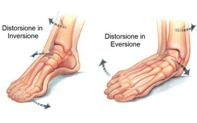 Trattare l'instabilità cronica della caviglia