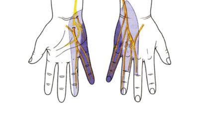 Le Algie Cervico Brachiali