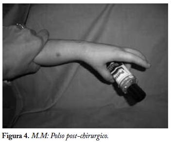 Artrogriposi