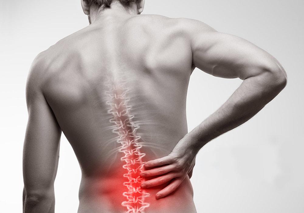 mal di schiena disordini muscolari
