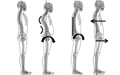 Rachide lombare di profilo e Postura