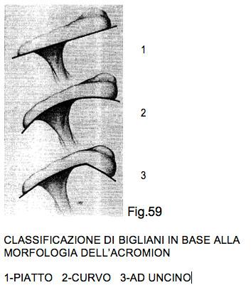 patologia acromio omerale
