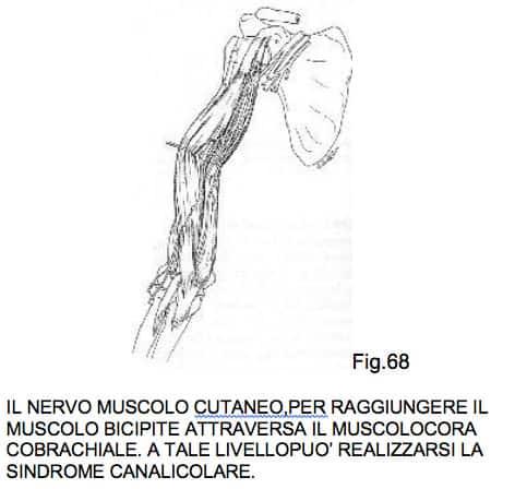 PATOLOGIA NEUROLOGICA DELLA SPALLA