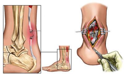 Il Tendine d'Achille: rottura e riabilitazione