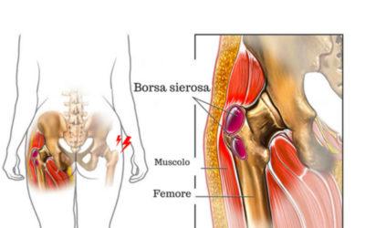 Borsite e Tensore della Fascia Lata: trattamento riabilitativo