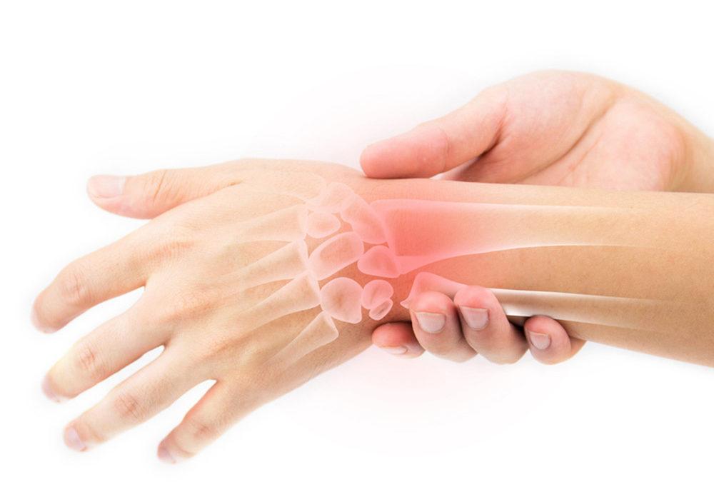 Artrite reumatoide trattamento riabilitativo