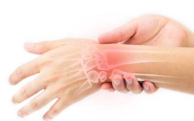 Artrite reumatoide: trattamento riabilitativo