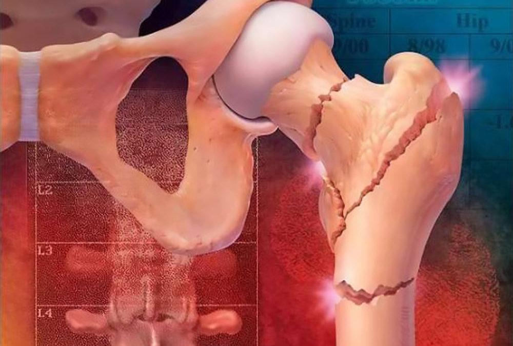 osteoporosi e riabilitazione