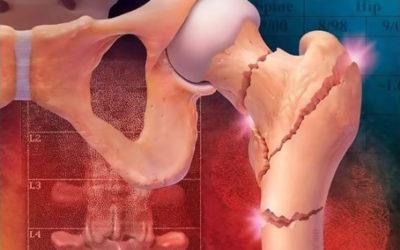 Osteoporosi: Riabilitazione nella frattura femorale prossimale