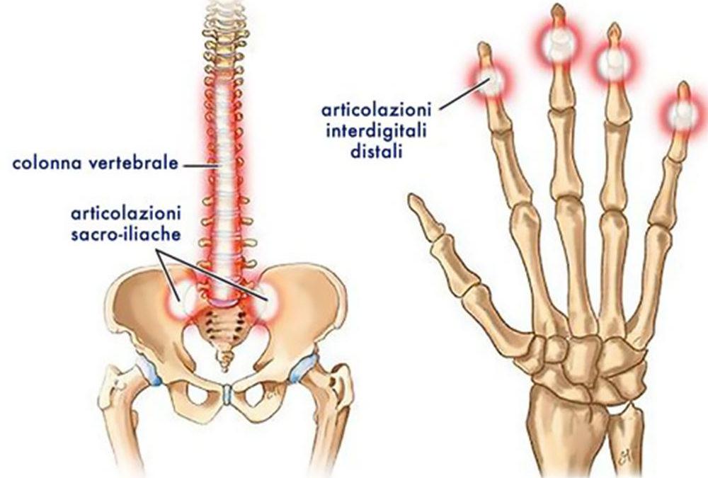 Terapia e riabilitazione artrite Psoriasica