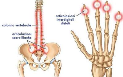 Ruolo della terapia fisica e della riabilitazione nel trattamento dell'artrite psoriasica