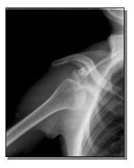 La spalla instabile