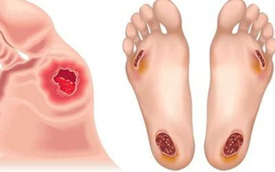 Il Piede Diabetico: prevenzione, diagnosi e terapia