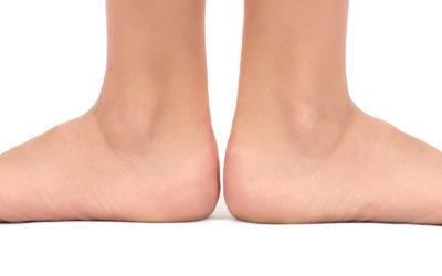 Programma riabilitativo del piede piatto operato nell'età evolutiva