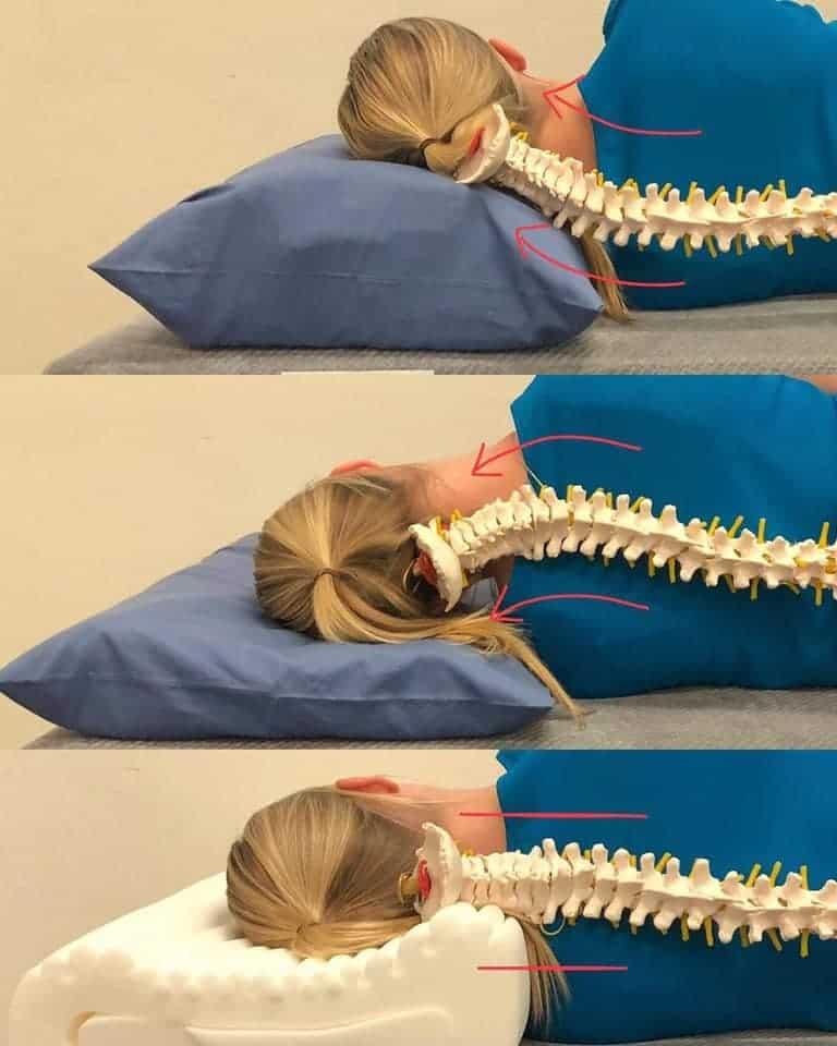 la sindrome da stretto toracico superiore e terapia osteopatica