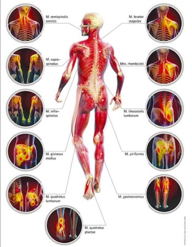 Osteopatia E Il Trattamento Dei Trigger Point