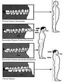 Il sistema masticatorio e osteopatia