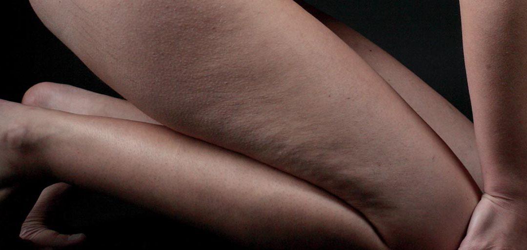 cellulite e osteopatia