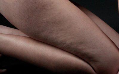 Osteopatia e cellulite: Articoli – D.O. Giuseppe Totaro