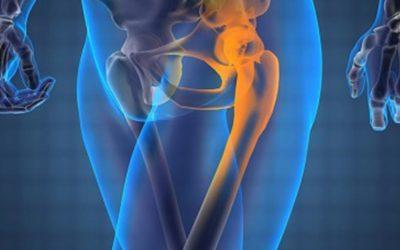 Osteopatia e disfunzione della coxofemorale