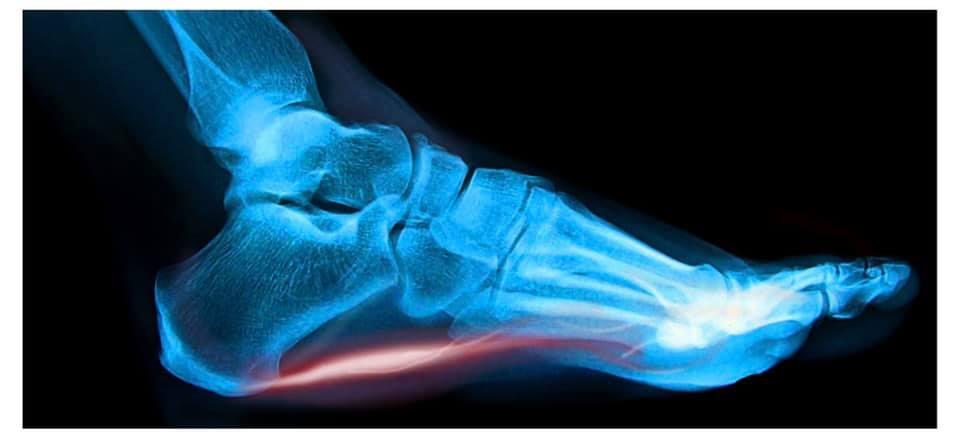 Fascite plantare e Osteopatia