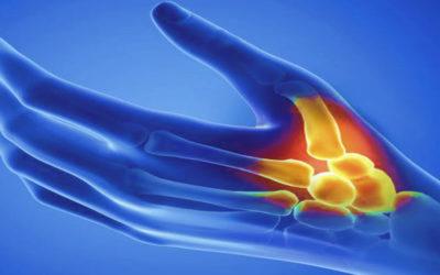 Il trattamento osteopatico della Rizoartrosi