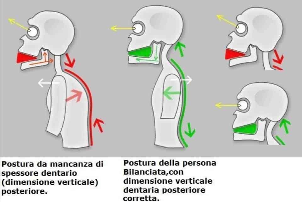 Osteopatia e relazione con la catena linguale