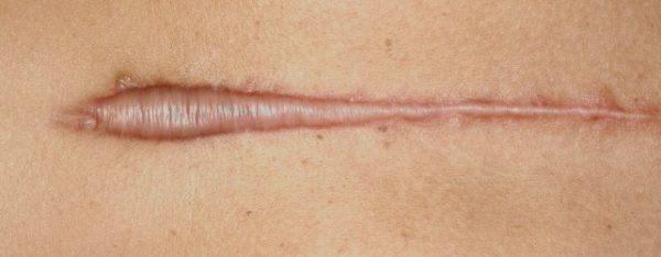 Perturbazione fasciale da cicatrice da ustione