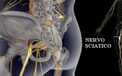 Sciatalgia: eziologia, diagnosi e terapia