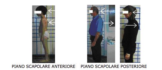 Trattamento interdisciplinare delle sindromi posturali